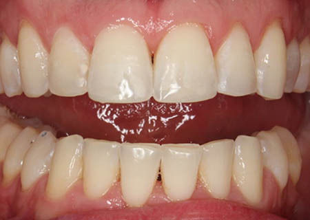 invisalign-after-2