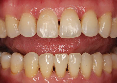 invisalign-after-3