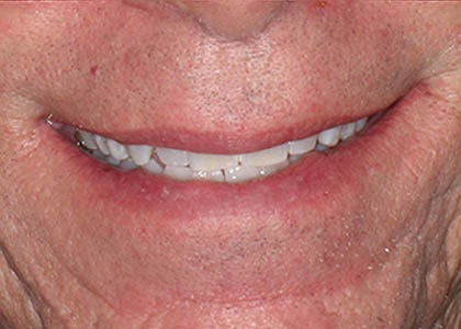 teeth-whitening-after-1