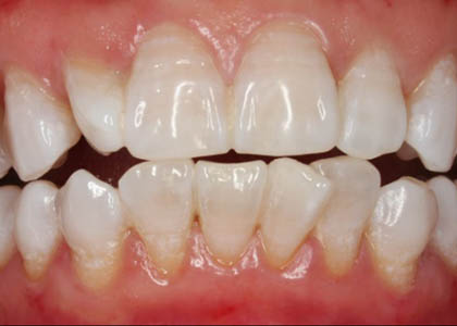 teeth-whitening-after-2