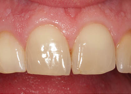 teeth-whitening-after-3